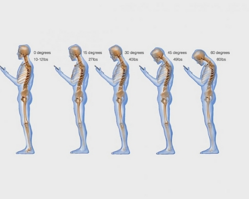 Text Neck Epidemic - Image Source Washington Post