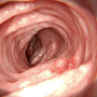 Artwork for New Recommendations for How Often to Repeat Colonoscopy Following Polypectomy