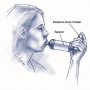 Artwork for How to Diagnose and Manage Adult Asthma