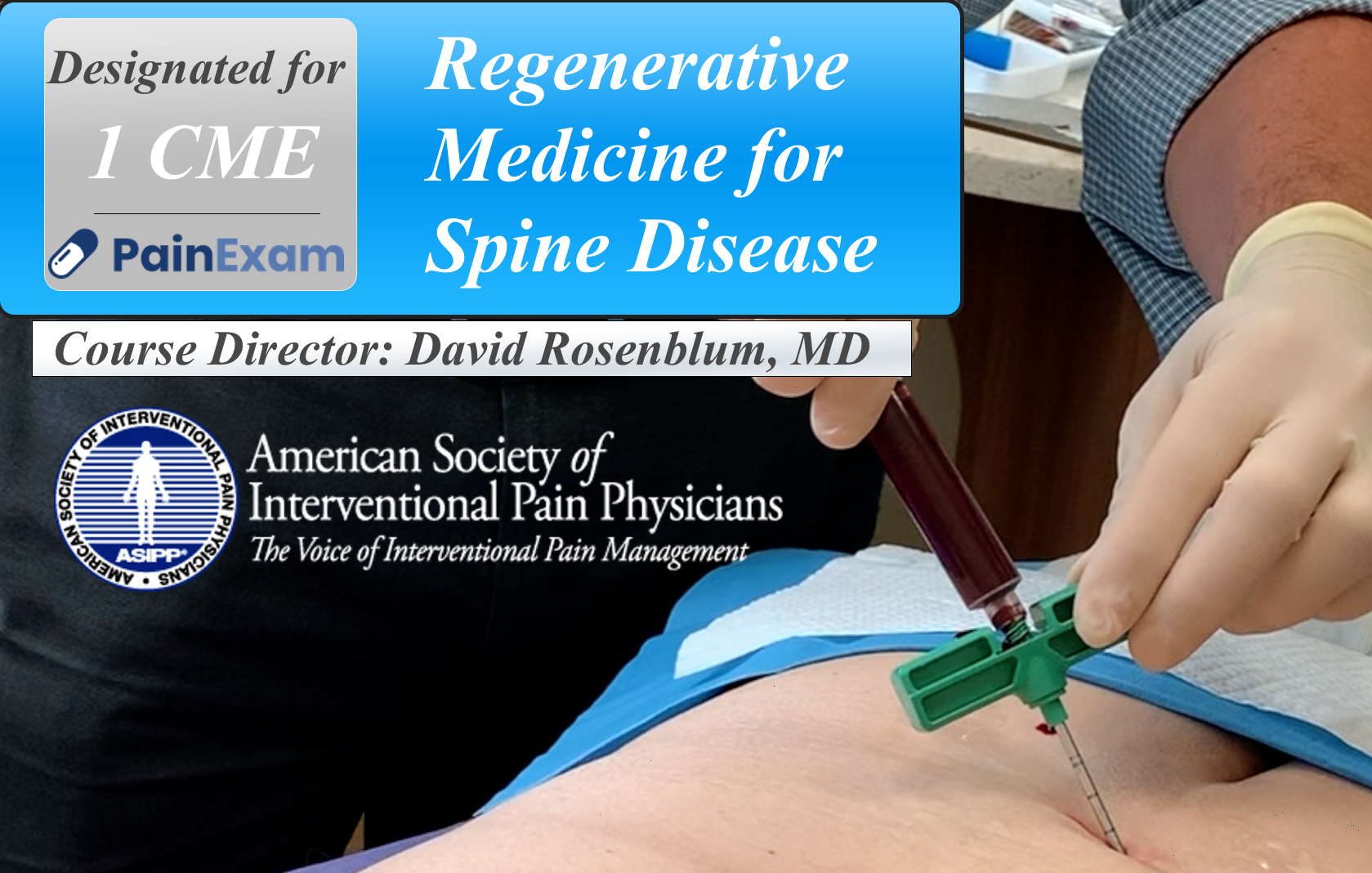 Regenerative Medicine for Spine Disease