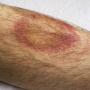 Artwork for Treating Lyme Disease in 2018, Part 2