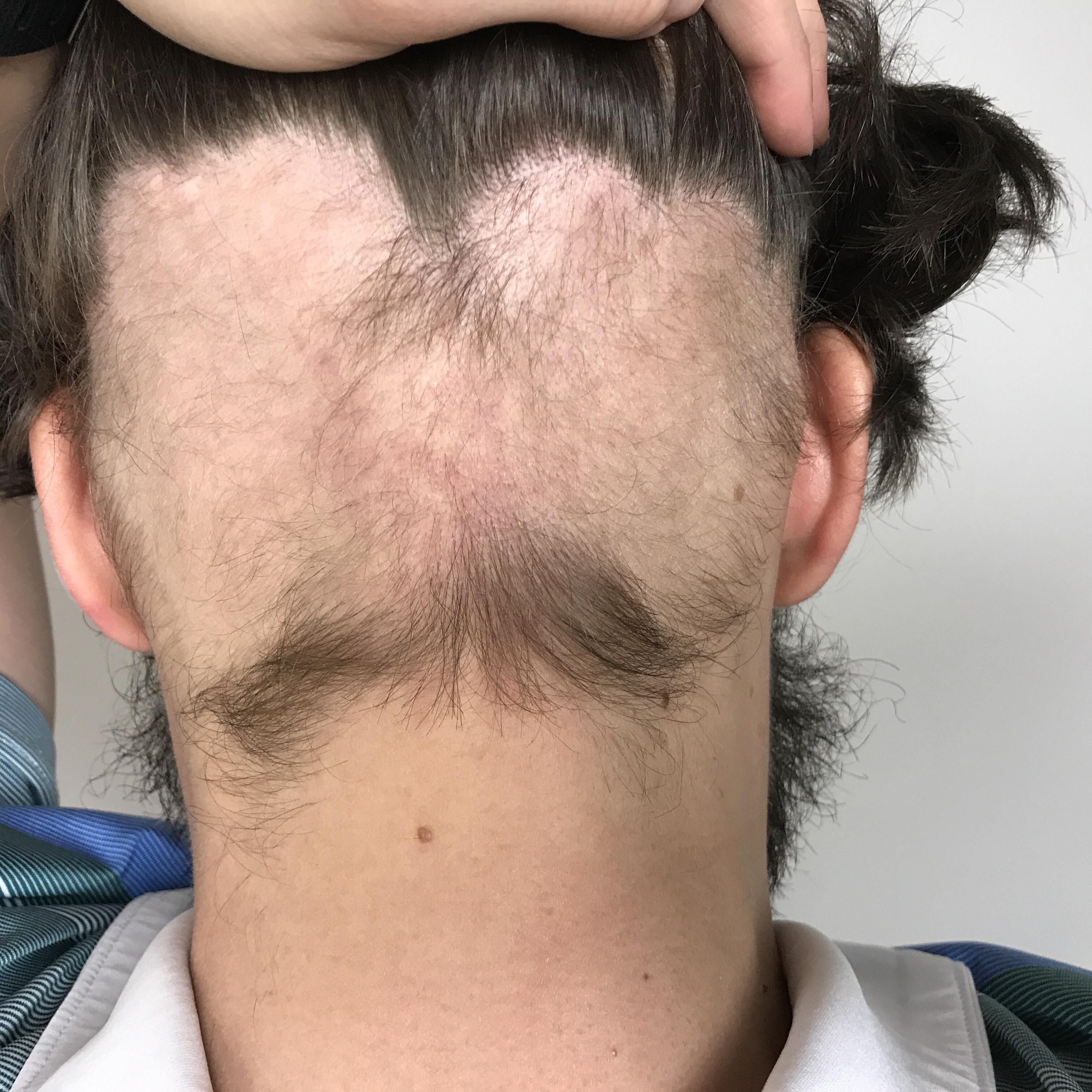 Alopecia 01 - David Fedor back