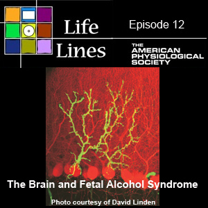 Episode 12: The Brain and Fetal Alcohol Syndrome