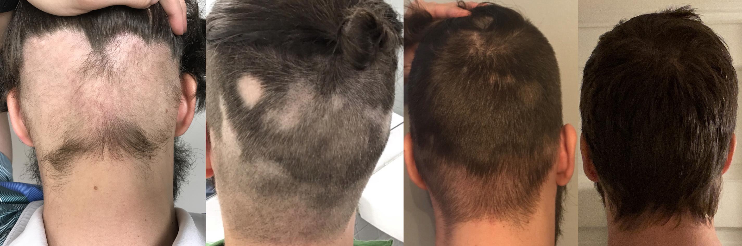 Alopecia Regrowth - David Fedor back