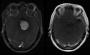 Artwork for Podcast 582:  Gadolinium - The Contrast of MRI