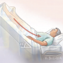 Artwork for Fluid Resuscitation for Patients in Septic Shock
