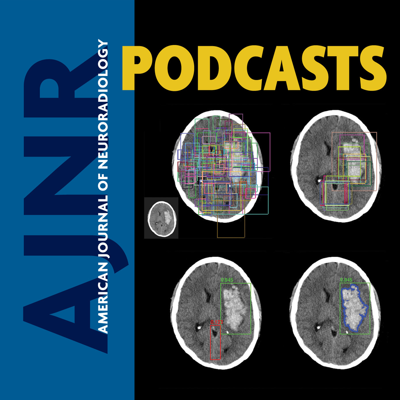 AJNR Podcasts show art