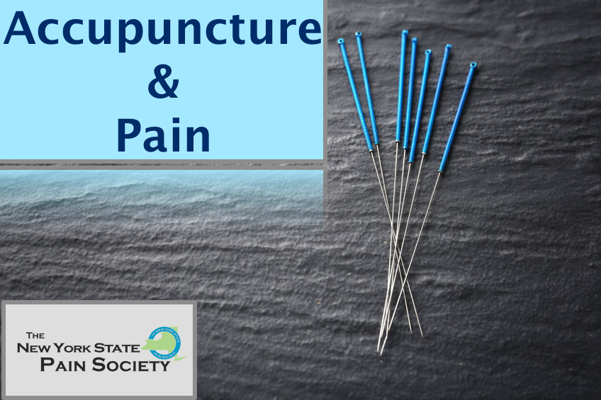accupuncture with Peter Bongiorno ND, LAc