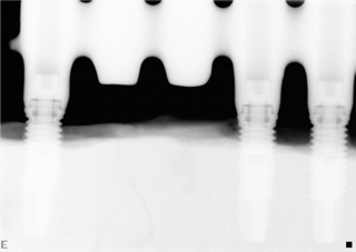 Test av passform/misfit på 5-ledsbroar. Röntgen på 5-ledsbroar (3 implantat) med 150uM misfit där distansskruven inte är dragen och är dragen.