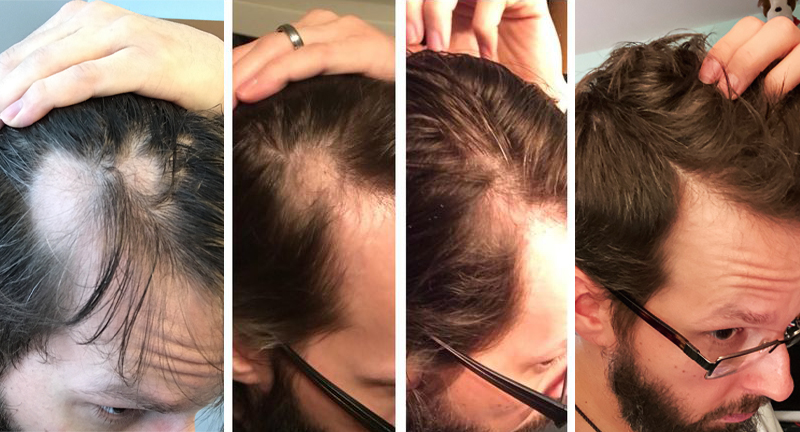 Alopecia Regrowth - David Fedor front