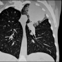 Artwork for Durvalumab With or Without Tremelimumab vs Standard Chemotherapy for Metastatic NSCLC