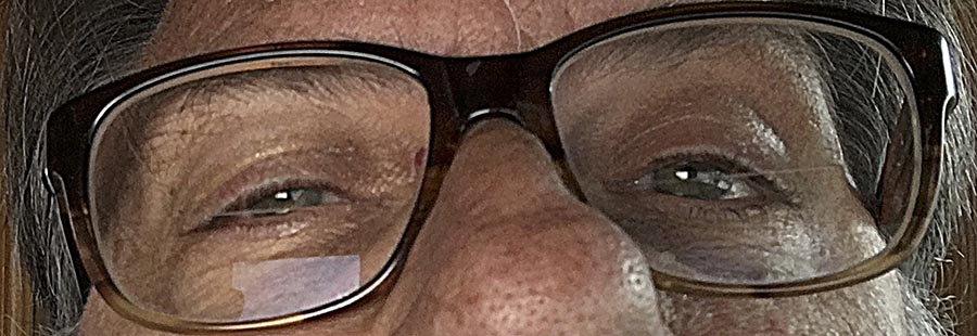 Mark squint