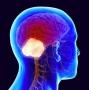 Artwork for Podcast # 485: Cerebellar Stroke