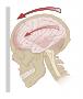 Artwork for Podcast #281: Intracranial Hemorrhage Treatment
