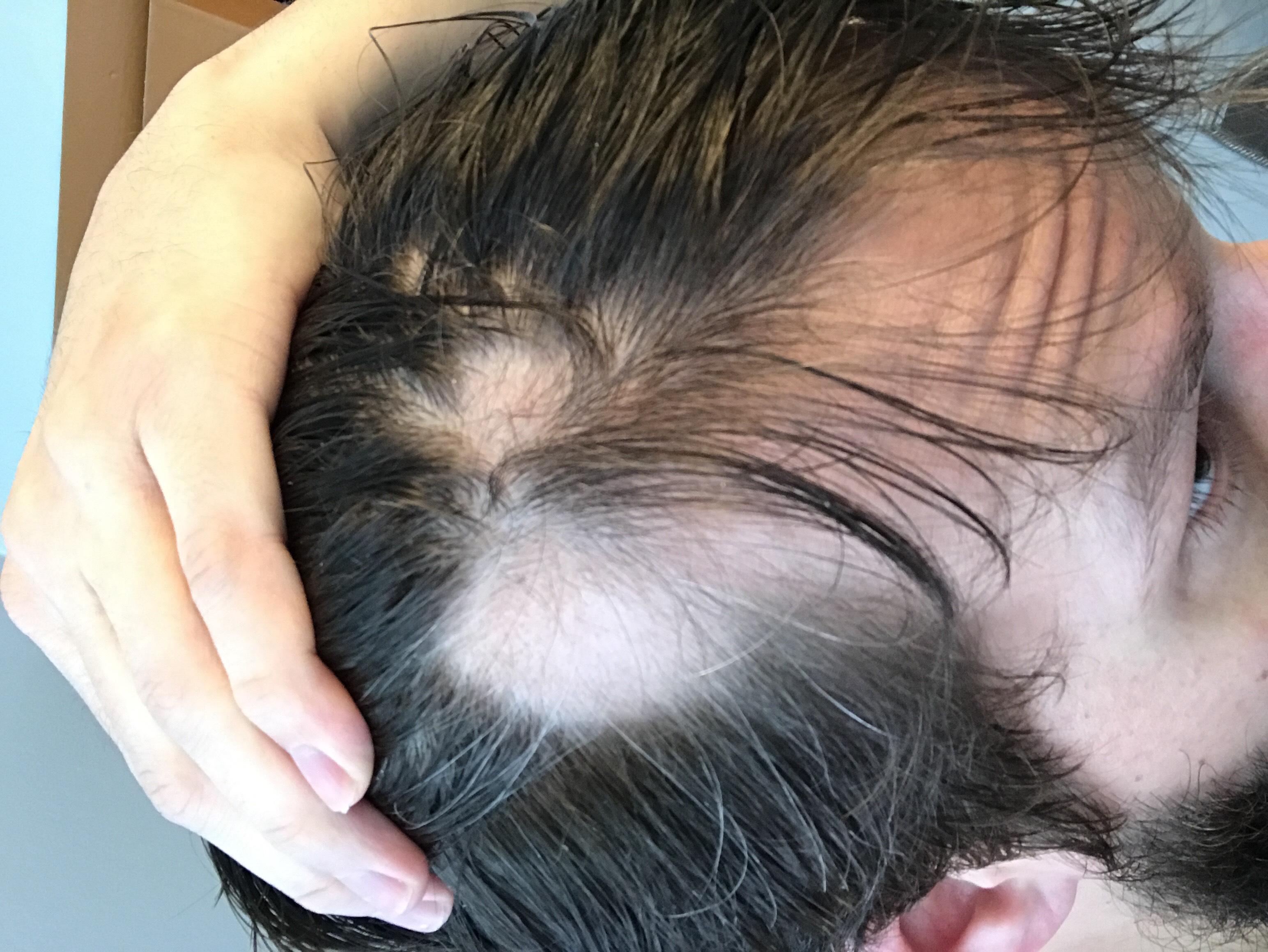 Alopecia - David Fedor front