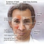 Artwork for Diagnosis and First-Line Treatment of Chronic Sinusitis