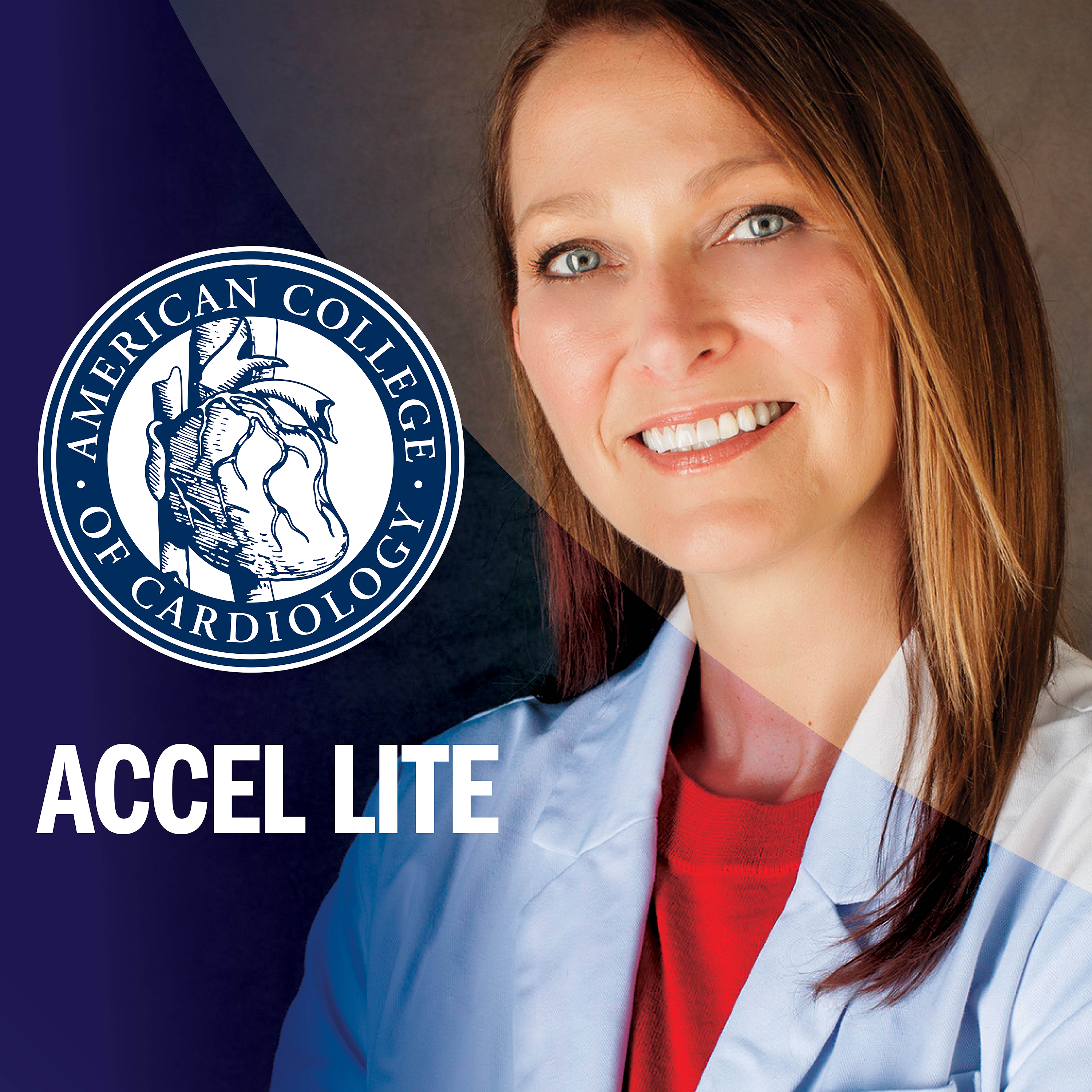 ACCEL Lite: Featured ACCEL Interviews on Exciting CV Research show art