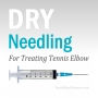 Artwork for Dry Needling For Tennis Elbow
