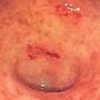 Artwork for Update on Ulcerative Colitis—2020