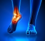 Artwork for Podcast #215: Ankle Pain
