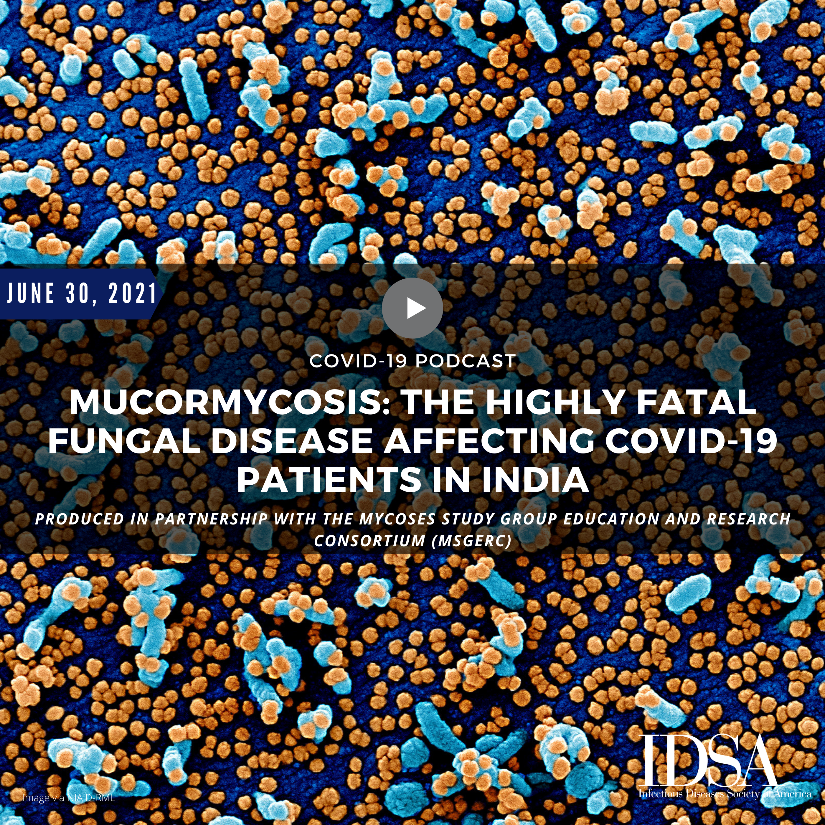 Mucormycosis: The Highly Fatal Fungal Disease Affecting COVID-19 Patients in India