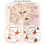 Artwork for Alzheimer Disease Overview and the Possibility That It's Caused By Infections