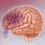 Artwork for Association Between Statin Use and Risk of Dementia After a Concussion