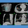 Artwork for Integration of Stereotactic Ablative Radiotherapy Plus Surgery for Early-Stage Non–Small Cell Lung Cancer