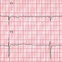 Artwork for Update on Atrial Fibrillation: Review of the New AHA/ACC/HRS Treatment Guidelines