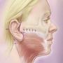 Artwork for Advances in Face-lift Techniques 2013-2018