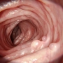 Artwork for Association of Adenoma and Polyp Detection Rates With Endoscopist Characteristics