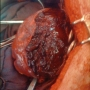 Artwork for Effect of Prophylactic Embolization on Trauma Patients at High Risk of Splenectomy
