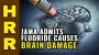 Artwork for JAMA admits FLUORIDE causes brain damage