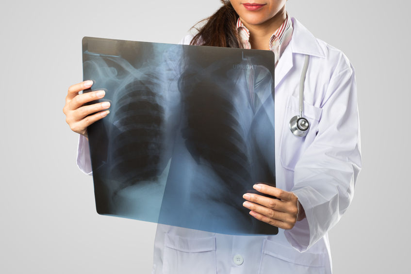 Pain physician evaluating xray