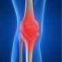 Artwork for Episode #201: What To Do About Knee Pain That Won't Go Away