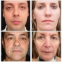 Artwork for Validation of a Method for Facial Age Estimation by Plastic Surgeons