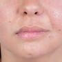 Artwork for Nasolabial Incision Technique for Facial Paralysis Management