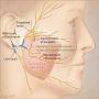 Artwork for Masseteric Nerve Transfer for Facial Nerve Paralysis