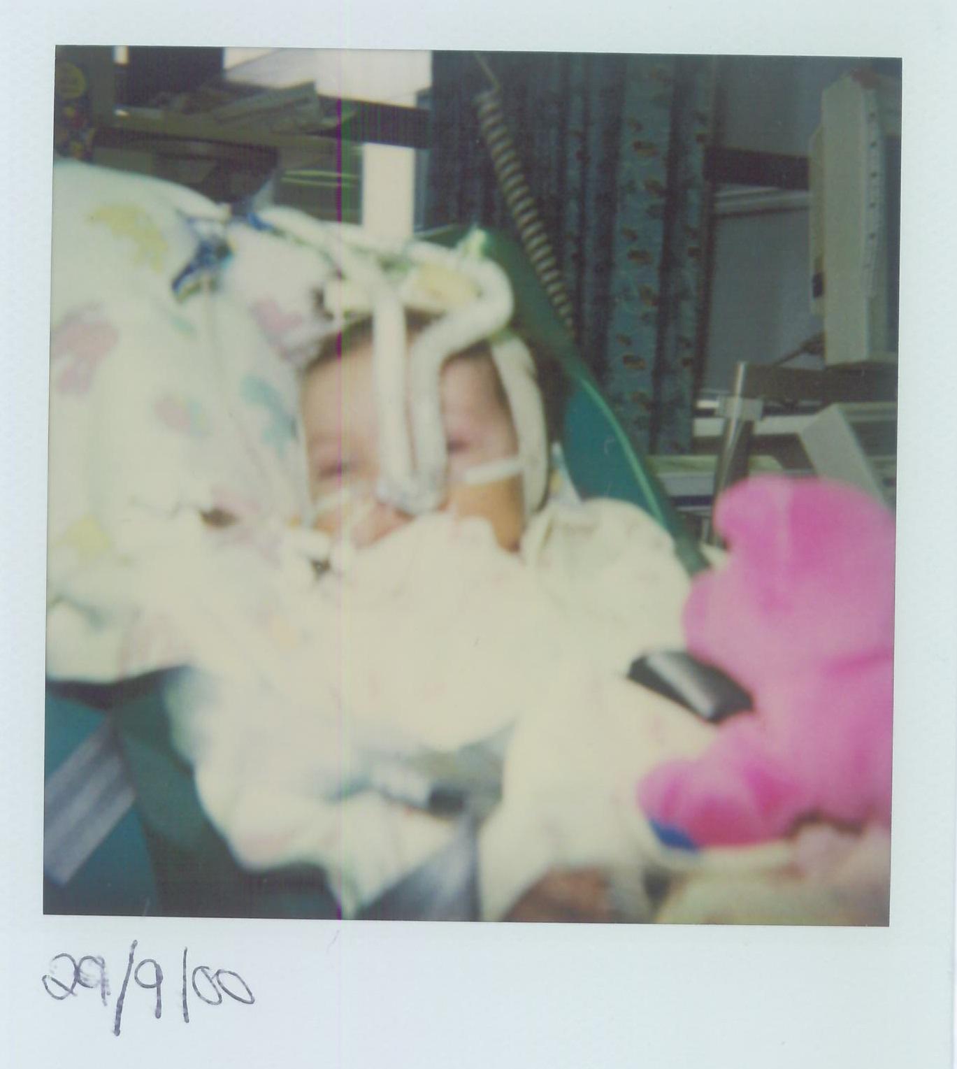 Hannah in hospital as a baby