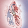 Artwork for Transcatheter Aortic Valve Replacement for Patients at Low Surgical Risk—Selective or Ubiquitous?