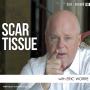 Artwork for Scar Tissue