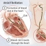 Artwork for Stroke Prevention in Atrial Fibrillation