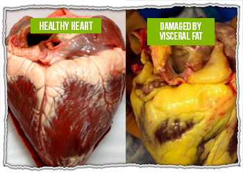 Heart surrounded by visceral fat