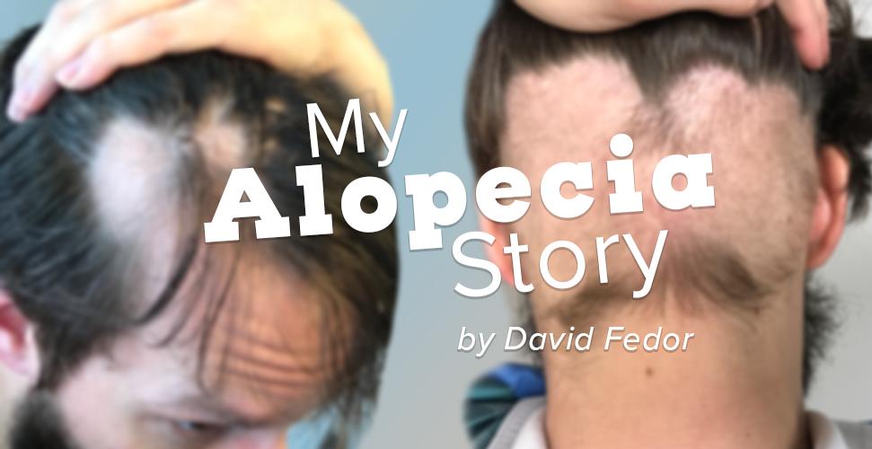 Overcoming Adversity: My Alopecia Story - by David Fedor